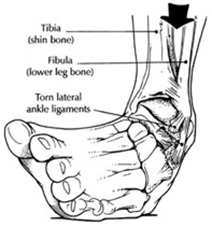 plantar-flexion-inversion-sprain